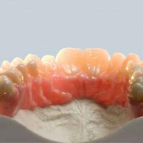 PDF-буклет: Диоксид циркония – информация для стоматологов