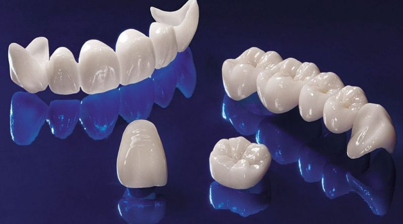 Фарфоровые и циркониевые коронки в стоматологии на Луговой